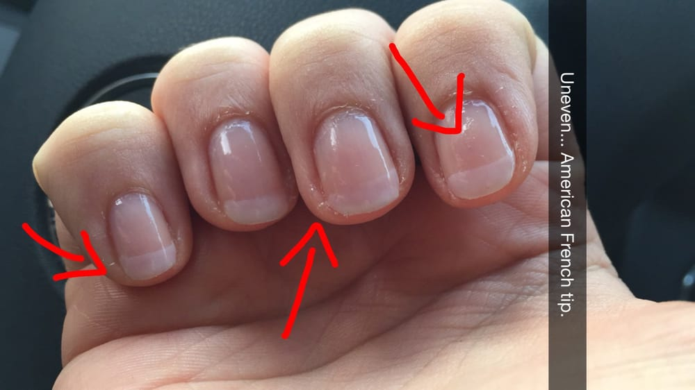 """Worst French tip """"manicure"""" (look at my cuticles) I have ever got! - Yelp"""
