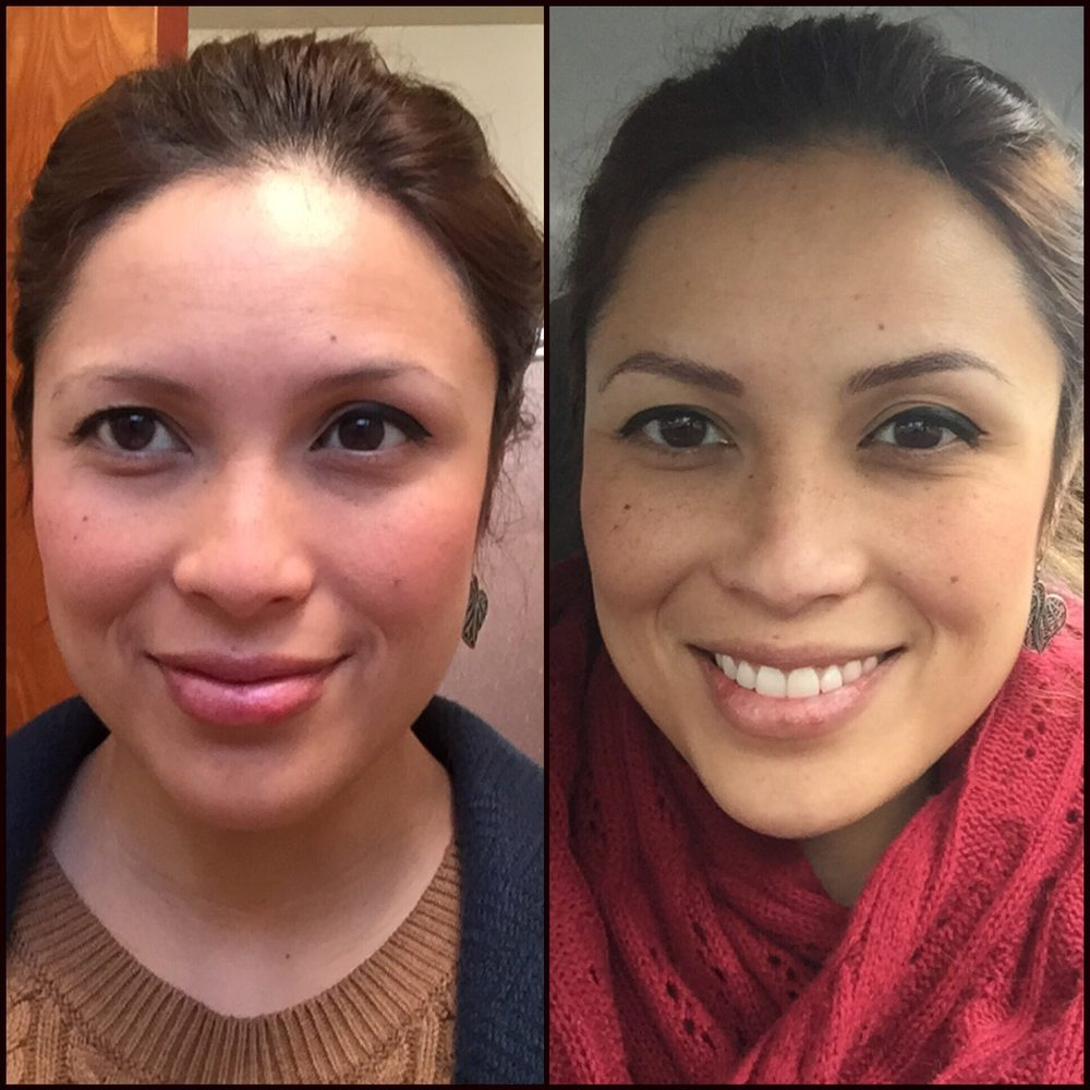 Left Before Tattoo Eyebrows Right After Tattoo Eyebrows By Sherri