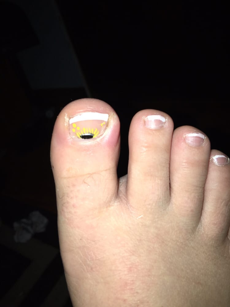 My toe after I cleaned the puss out from the infection, still very ...