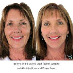 Facial surgeon qld