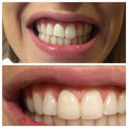 Emergency Dentist NYC - 96 Reviews - General Dentistry - 100