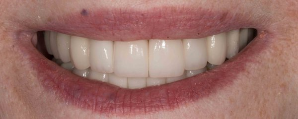 dental implants malibu