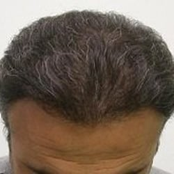 Physician S Hair Institute Hair Loss Centers 3940 N Campbell Ave