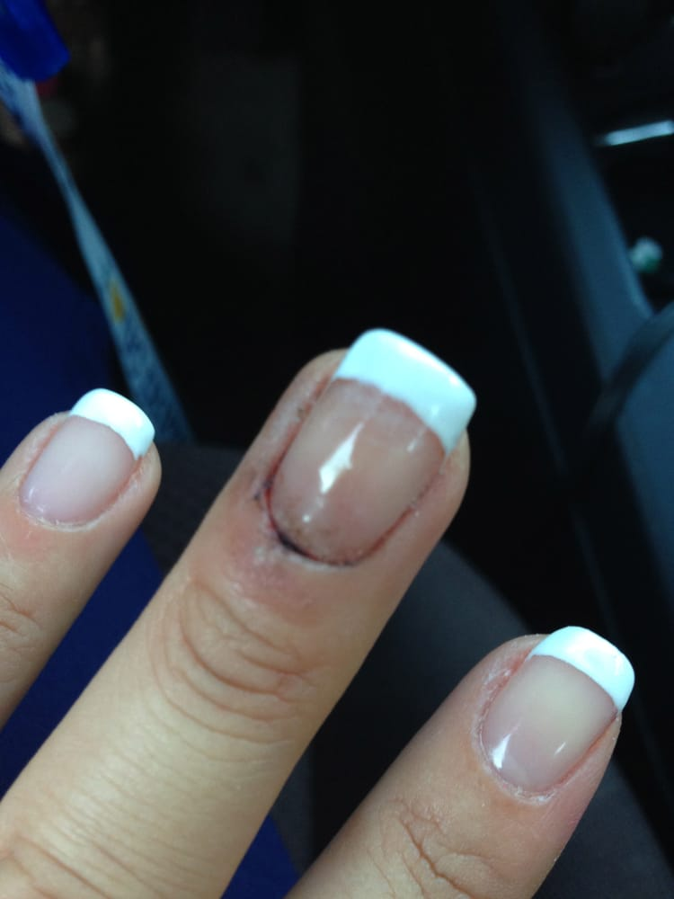 French manicure done wrong---cuticle skin was cut to the point where ...