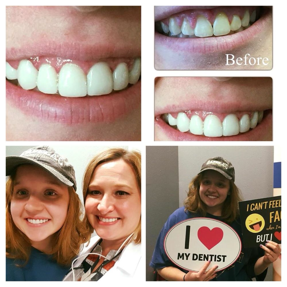 Dental veneers austin - Park dental st paul