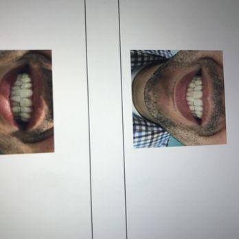 Naturally White Teeth Whitening 51 Photos 78 Reviews Teeth