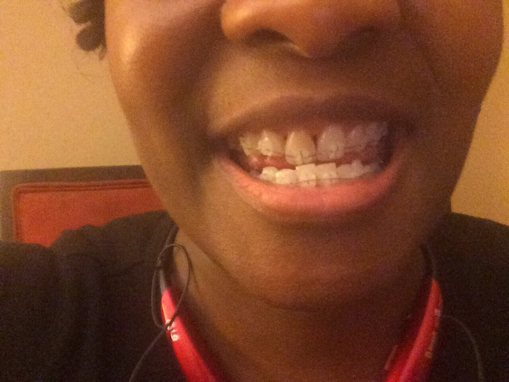 Great Expressions Dental Centers East Rockaway: 112 Main St, East Rockaway, NY