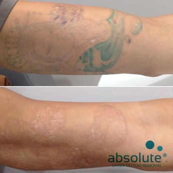 Color tattoo removal - Yelp