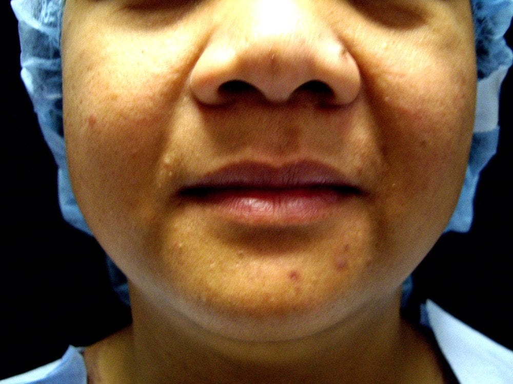 Before Buccal Fat Removal - Yelp
