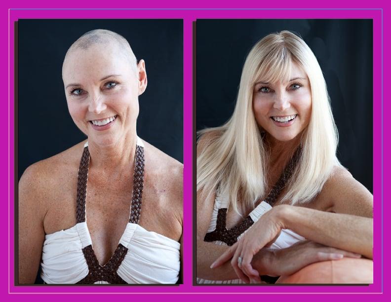 Custom Wigs For Alopecia Trichotillomania Chemotherapy Cancer
