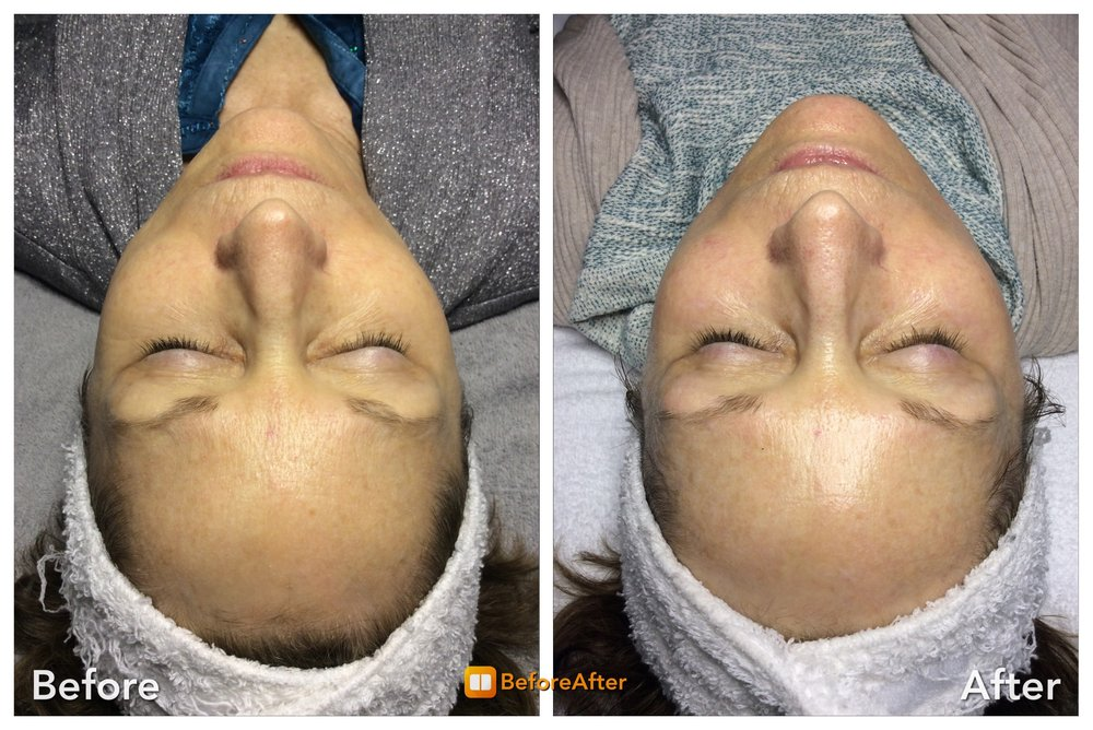 HD Skincare Solutions: 10215 Prosperity Park Dr, Charlotte, NC
