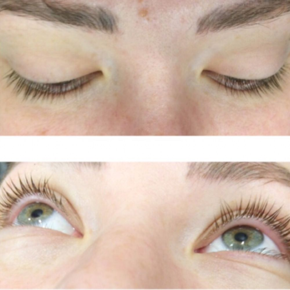Lash Lift I V Electrolysis 27 Photos Eyelash Service 1360 W