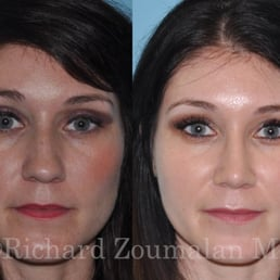 Well possible! maryland facial plastic surgeon apologise, but