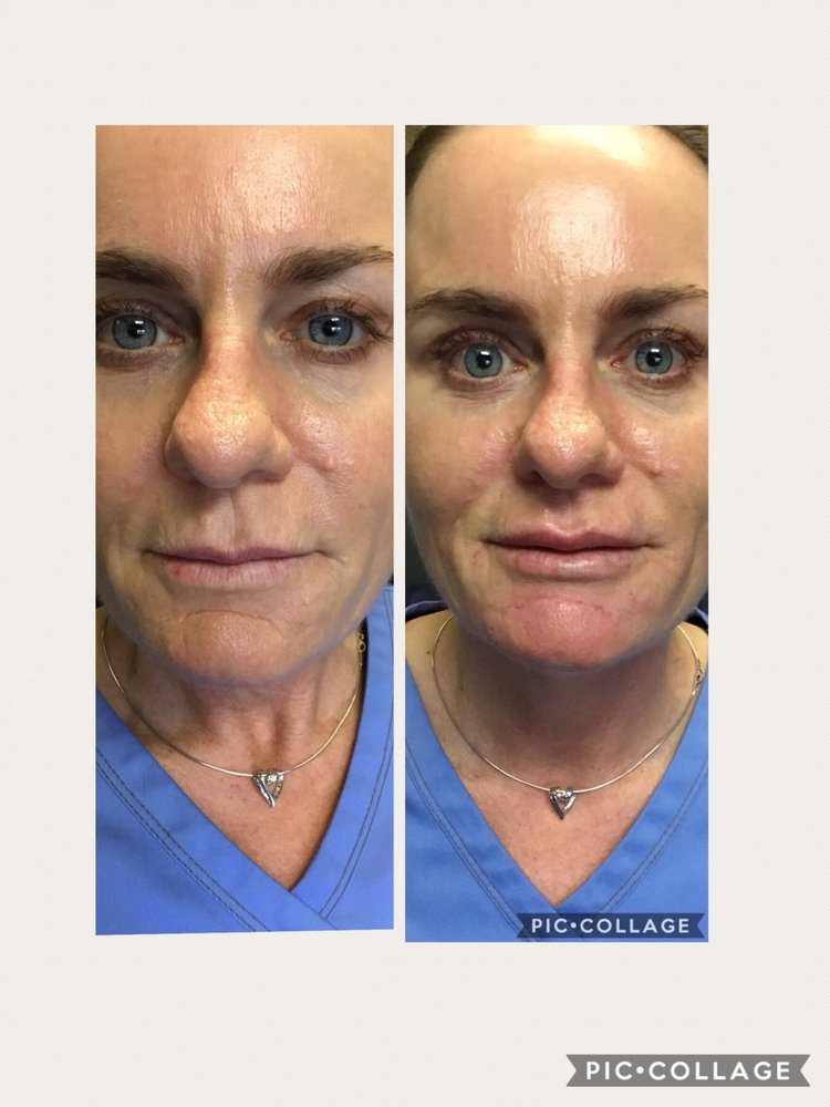 Chin Augmentation/Nasal Labial Folds with Bellafill - Yelp
