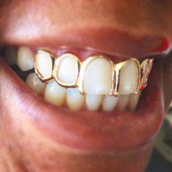 The Plug Jewelry & Gold Teeth Grillz - 129 Photos - Jewelry - 12592