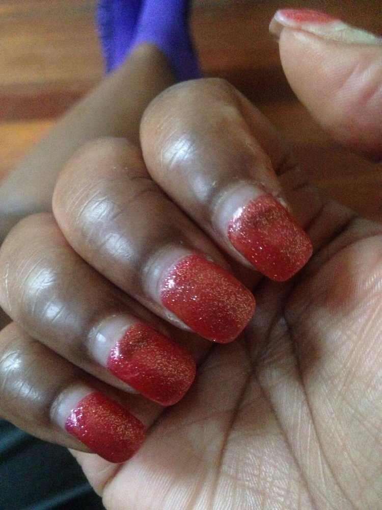 Fungal Nail Infection From Gel Nails | Splendid Wedding Company