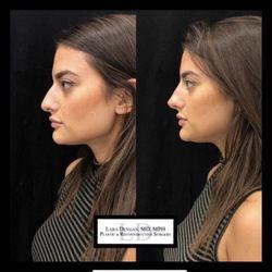 Lara Devgan, MD - Plastic & Reconstructive Surgery - 79 Photos & 11