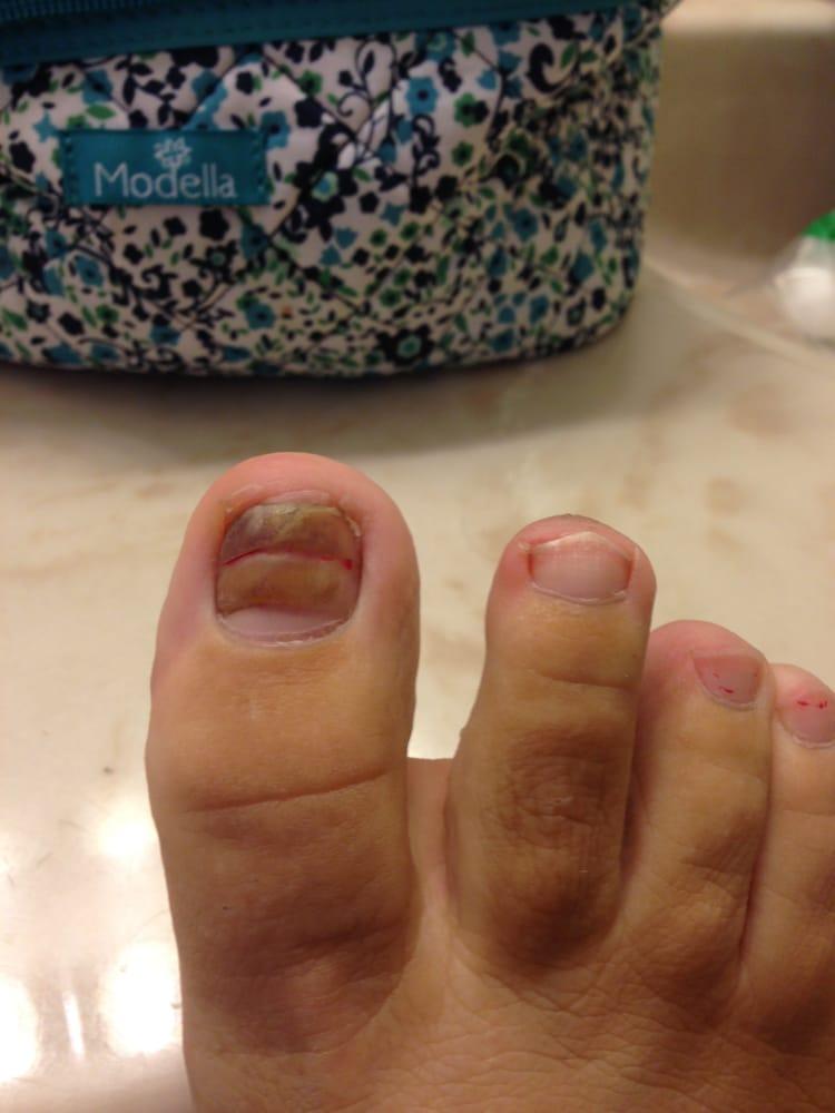 Gross toenail fungus and damaged nail after mani/pedi at Bamboo ...