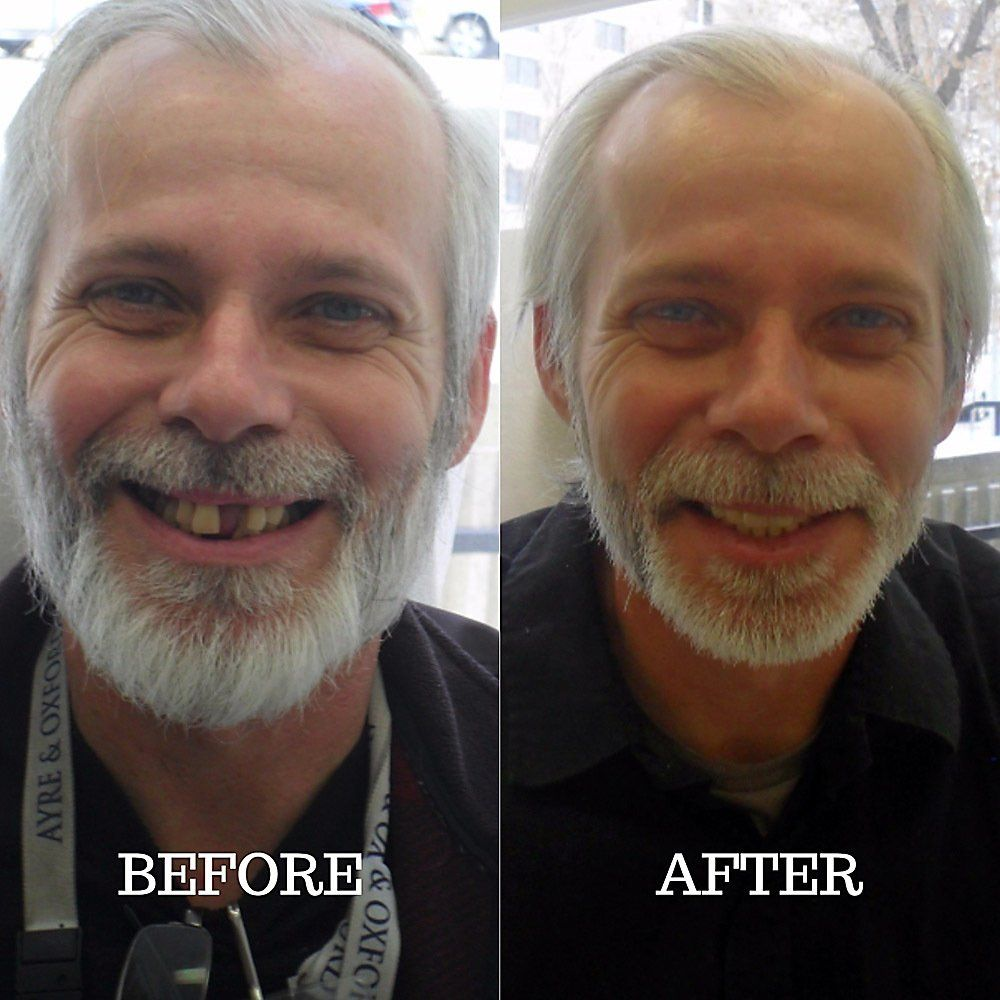 A before and after of a full mouth extraction - Yelp