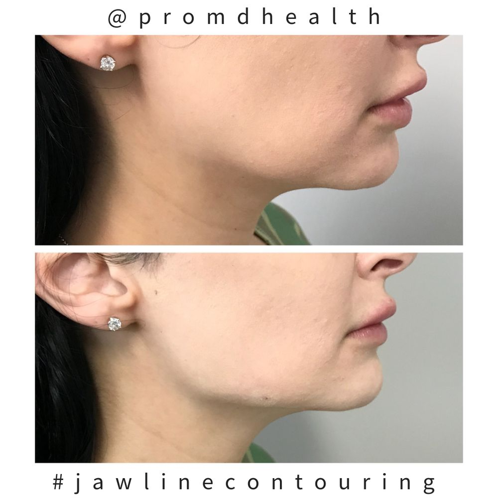 Before and after jawline contouring - Yelp