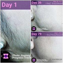 Electrolysis 100% Permanent Hair Removal - 2301 N Clark St, Lincoln