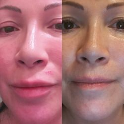 Opinion you adept laser facial and plastic surgery