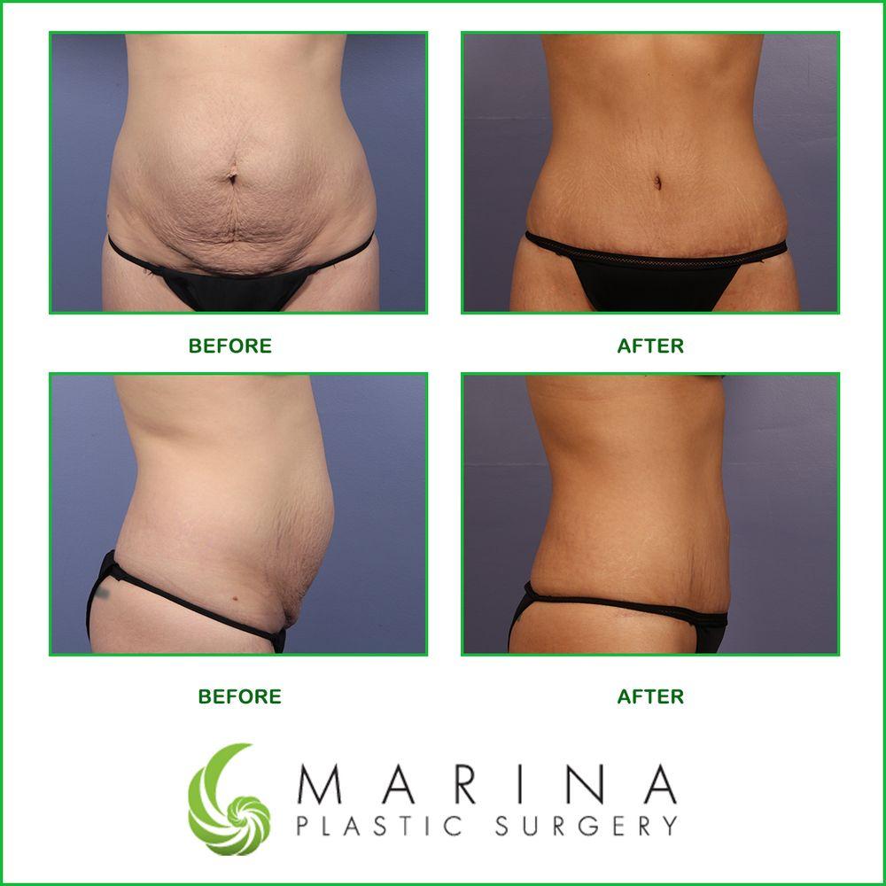 Marina Plastic Surgery 63 Photos Amp 171 Avis Chirurgie Esth 233 Tique 4644 Lincoln Blvd Del
