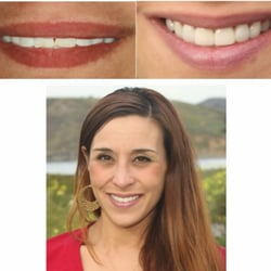John Acosta, DDS - Pacifica, CA, United States. Before and after of a patient who chipped her tooth. We were able to replace it with a veneer.
