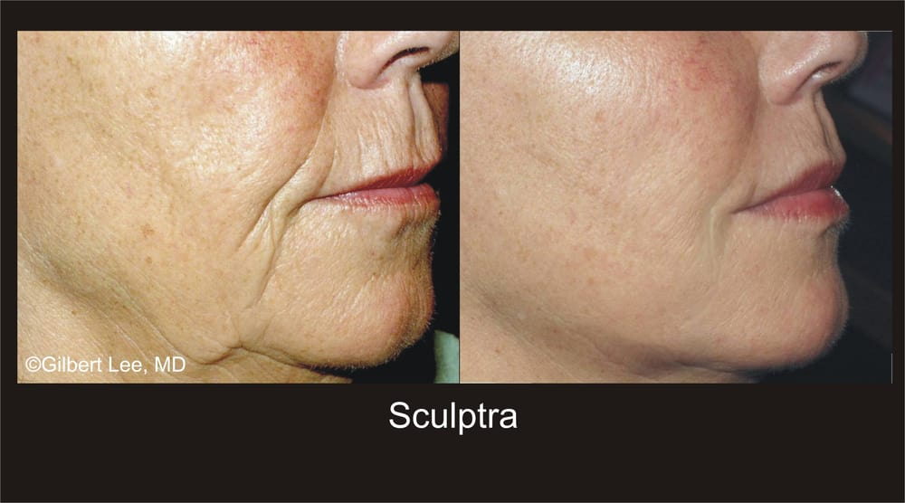 Before and after liquid facelift with sculptra aesthetic for 22 changes salon