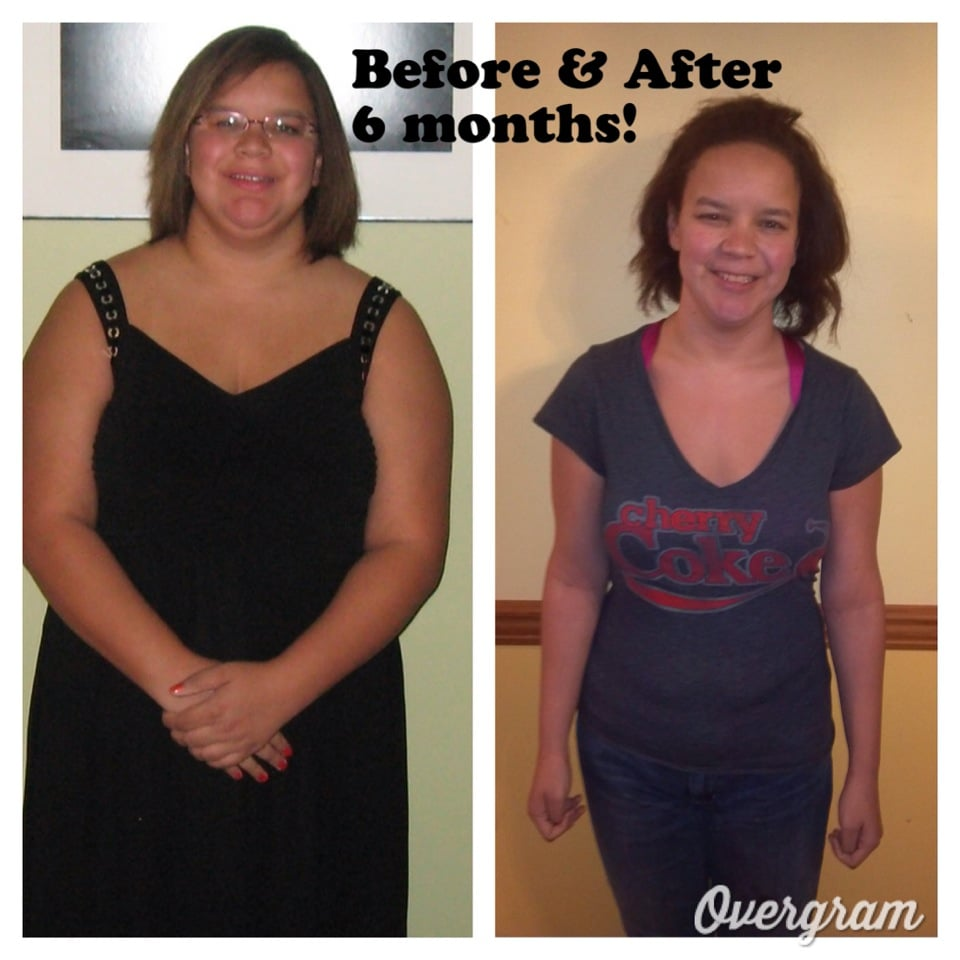 ... . Lost 40 lbs on HCG weight loss program - Before and After pictures