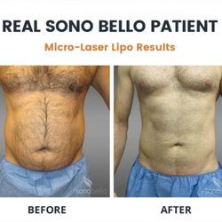 Sono Bello 30 Photos Weight Loss Centers 10500 Antenucci Rd