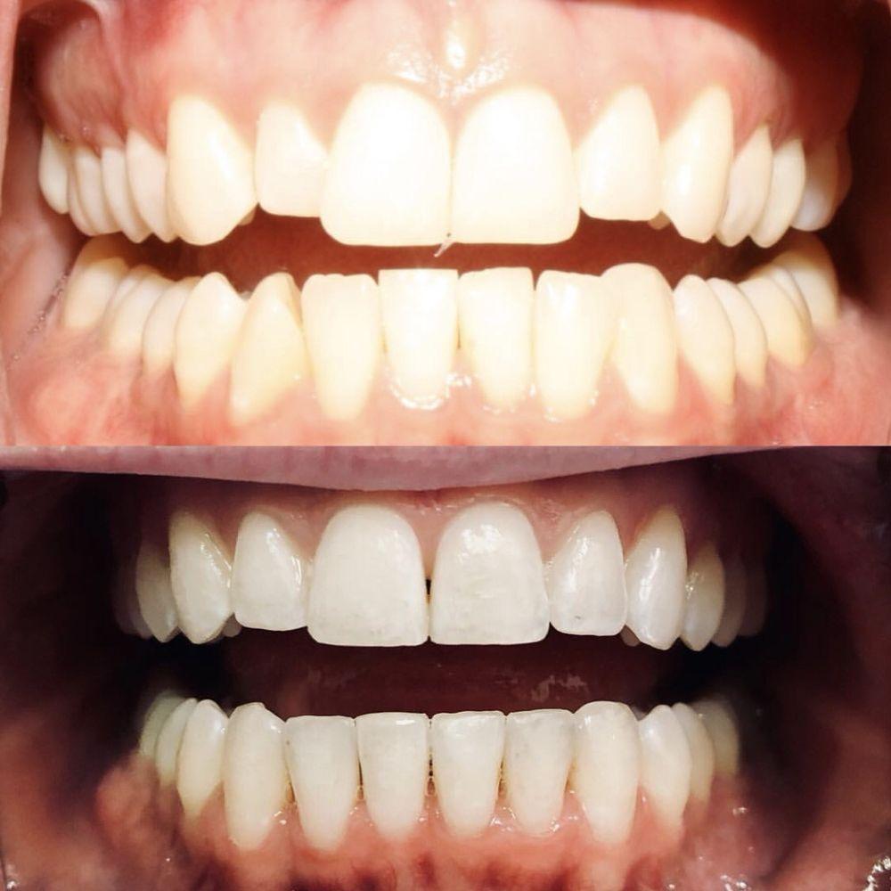 Best Implant Dentist Near Me: Upland Dental Implant & Orthodontics