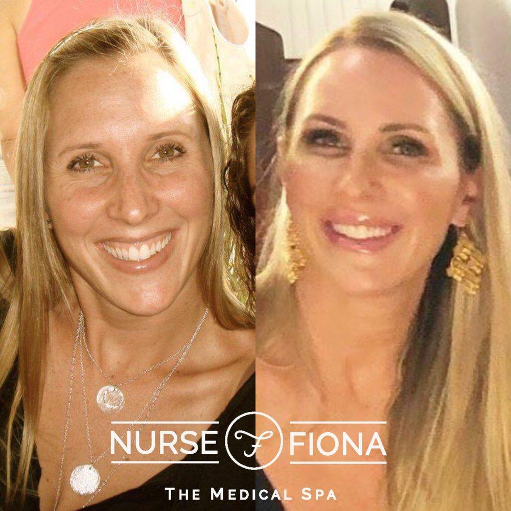 Nurse Fiona Medical Spa