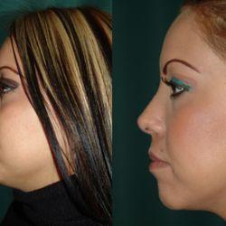 czech republic lazer facial surgery