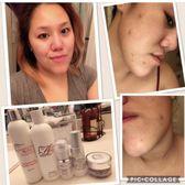 Abby Skin Clinic - 67 Photos - Skin Care - 31881 Alvarado