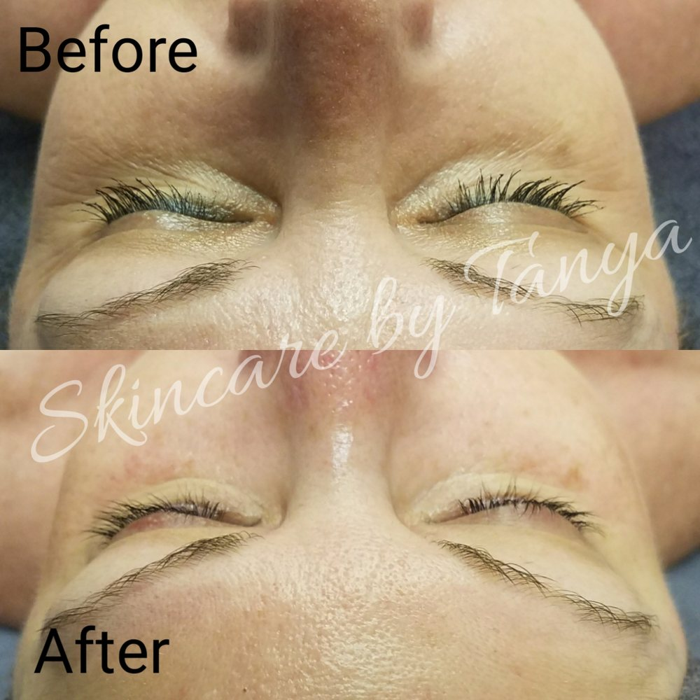 Custom Dermaplaning Infusion Facial Rezenate Treatment Celluma Led