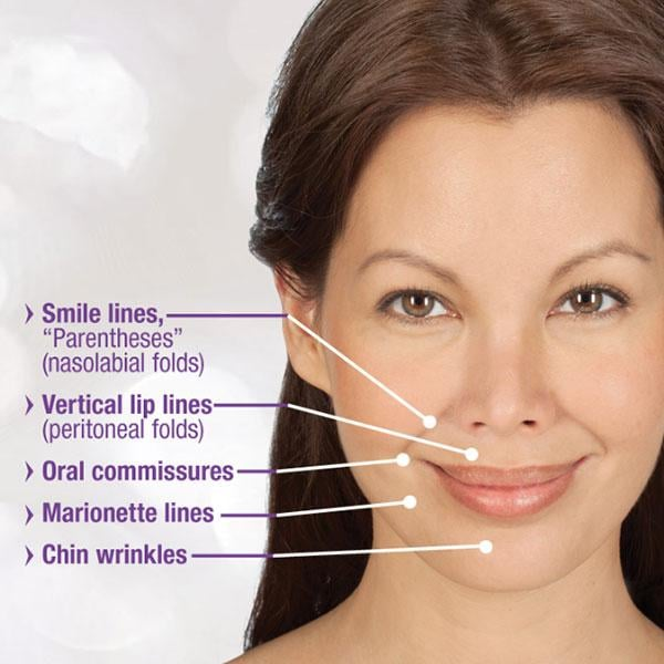 Juvederm Can Be Used To Fill Smile Lines Oral Commissures