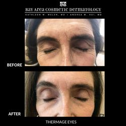 Bay Area Cosmetic Dermatology - 2019 All You Need to Know
