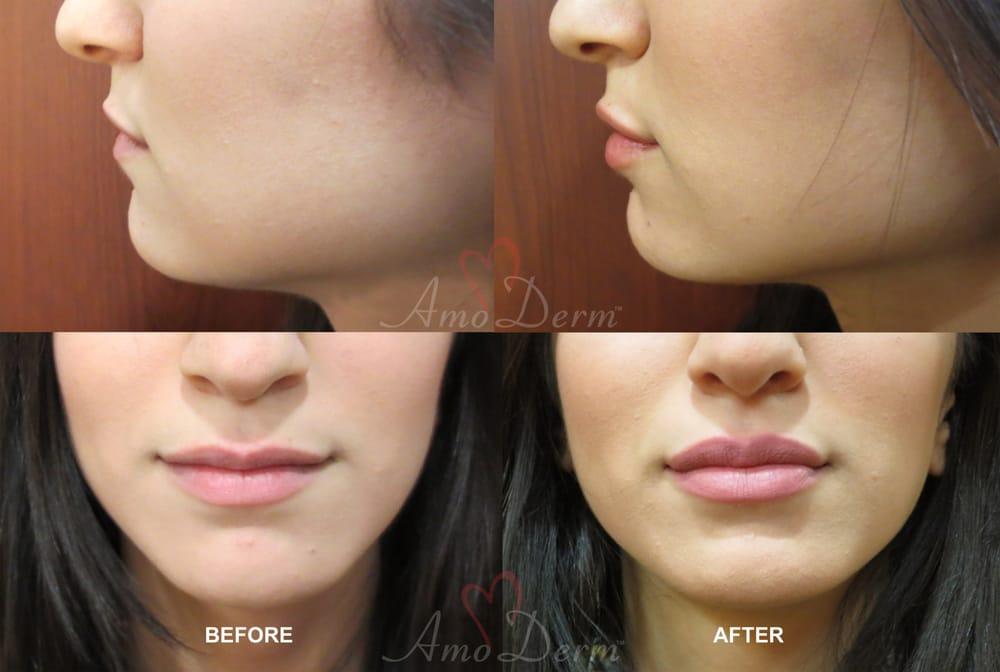 Irvine Auto Center >> Lip augmentation with hyaluronic acid filler (Juvederm, Vollure, Volbella, Voluma, Restylane or ...