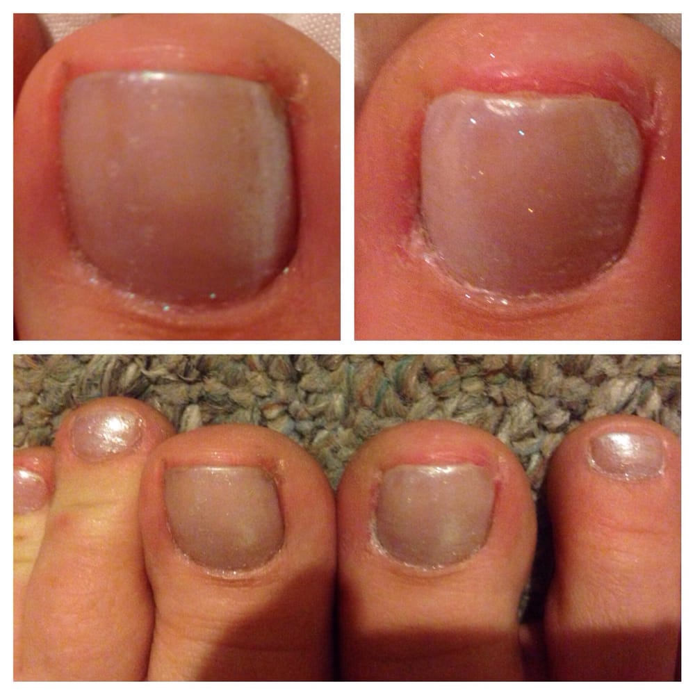 Worst and most painful pedicure I\'ve ever had. My right toe was cut ...