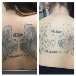 Absolute laser tattoo removal 33 photos 39 reviews for How much is picosure tattoo removal