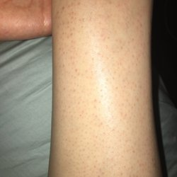 Sandra's Electrolysis - 19 Reviews - Laser Hair Removal