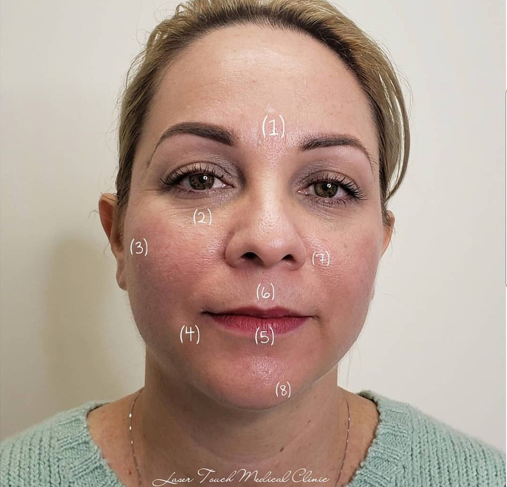 Botox vs  Dermal Fillers? 1  Botox Smooth brow furrows
