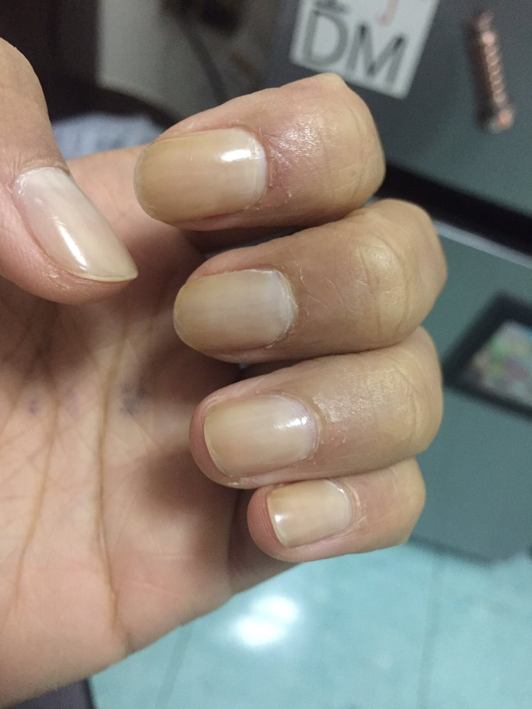Nail Polish Turned My Nails Yellow
