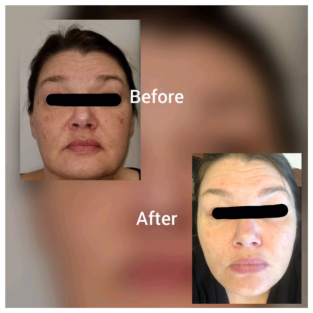 Pure Image Laser and Spa