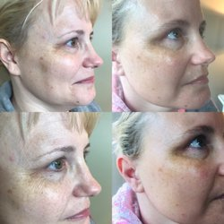 Stacia Rose Beauty Boutique - Make An Appointment - Skin
