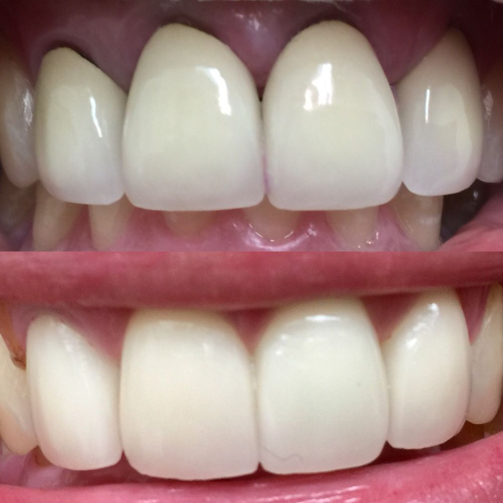 Front Teeth Crowns Before After Yelp