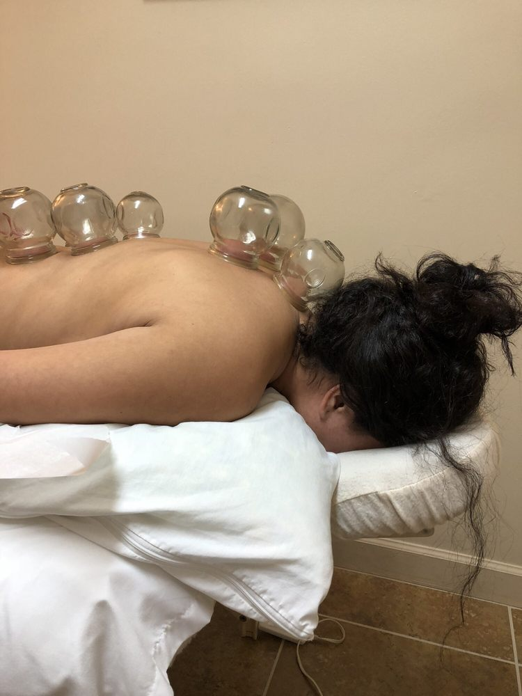lings-acupuncture-orlando-2