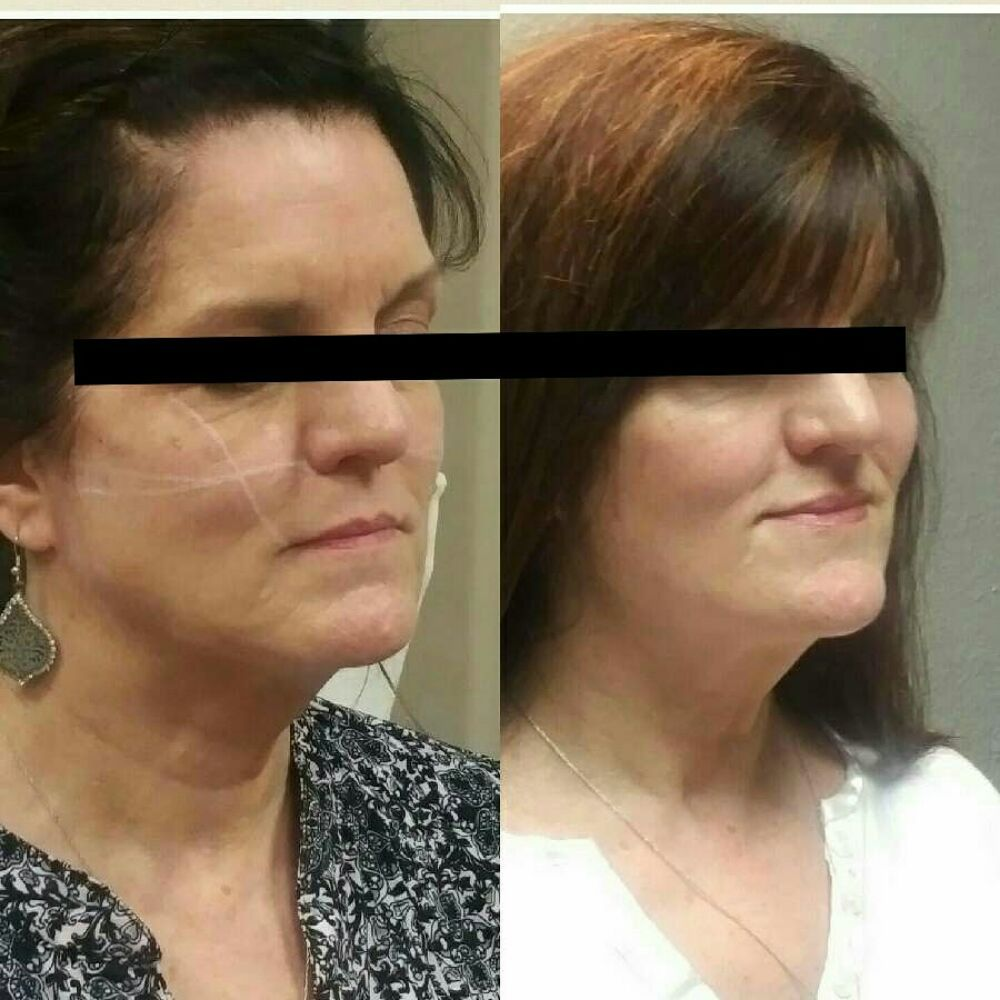 Look at the cheekbone definition with Juvederm Voluma! #fillers - Yelp