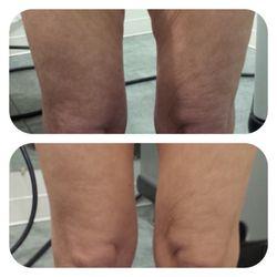 Highstyle Laser Center - 47 Photos & 14 Reviews - Skin Care